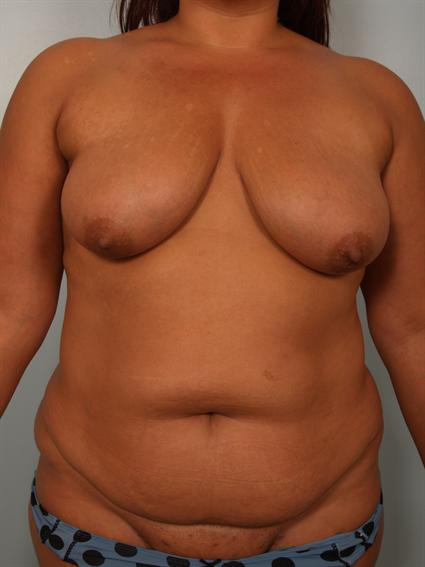 Straight on before photo of Breast Lift/Fat Grafting/Mommy Makeover