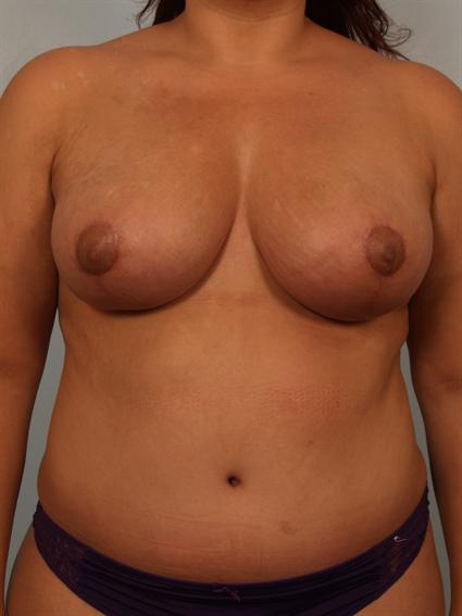 Straight on after photo of Breast Lift/Fat Grafting/Mommy Makeover