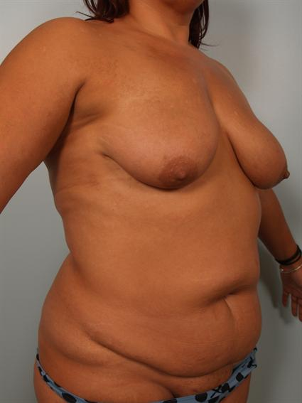 Angled before photo of Breast Lift/Fat Grafting/Mommy Makeover