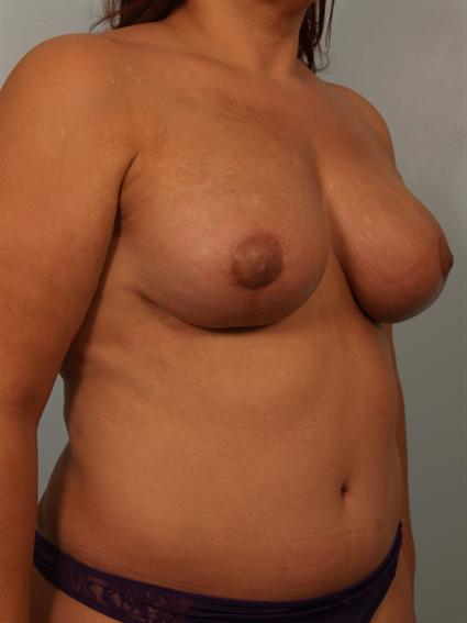 Angled after photo of Breast Lift/Fat Grafting/Mommy Makeover