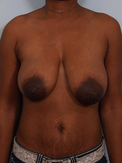 Straight on before photo of Breast Reduction/Breast Lift