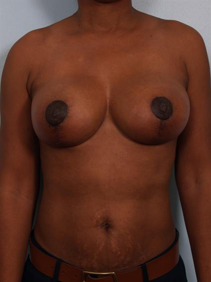 Straight on after photo of Breast Reduction/Breast Lift