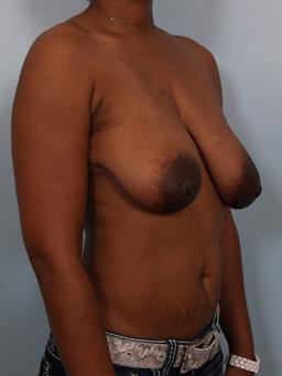 angled before photo of Breast Reduction/Breast Lift