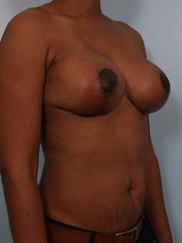 Angled after photo of Breast Reduction/Breast Lift