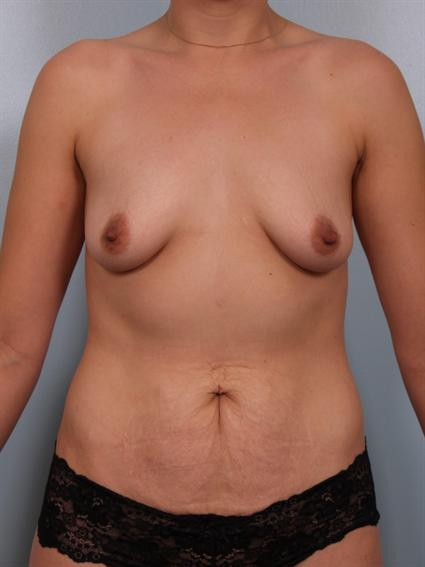 Straight on before photo of Breast Augmentation/Breast Lift/Mommy Makeover