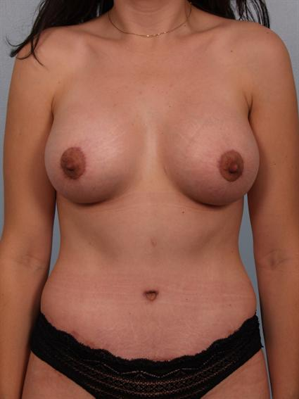 Straight on after photo of Breast Augmentation/Breast Lift/Mommy Makeover