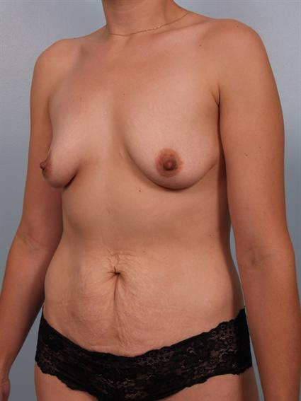 Angled before photo of Breast Augmentation/Breast Lift/Mommy Makeover