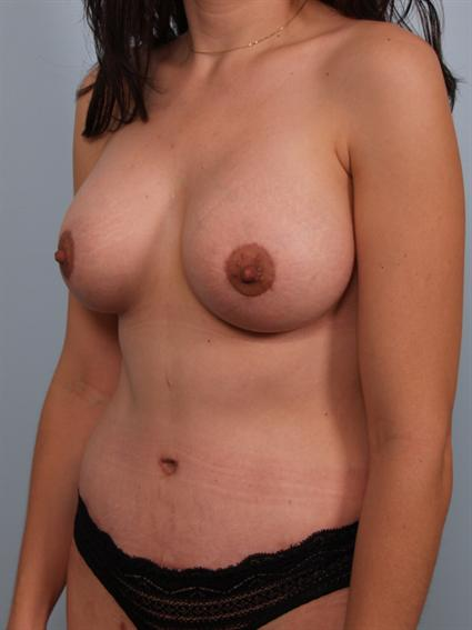 Angled after photo of Breast Augmentation/Breast Lift/Mommy Makeover