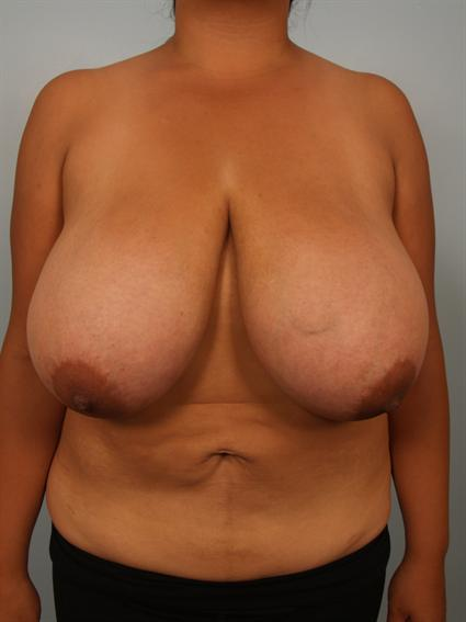 Straight on before photo of Breast Reduction - 1