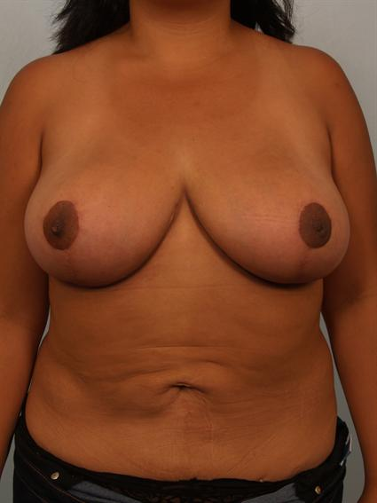 Straight on after photo of Breast Reduction - 1
