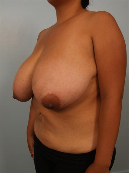 Angled before photo of Breast Reduction - 1