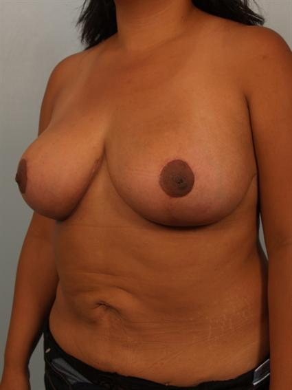 Angled after photo of Breast Reduction - 1