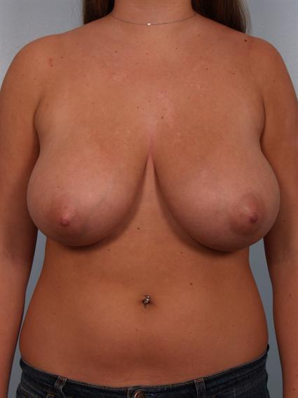 Straight on before photo of Breast Reduction - 2