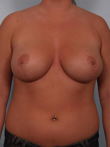 Straight on after photo of Breast Reduction - 2
