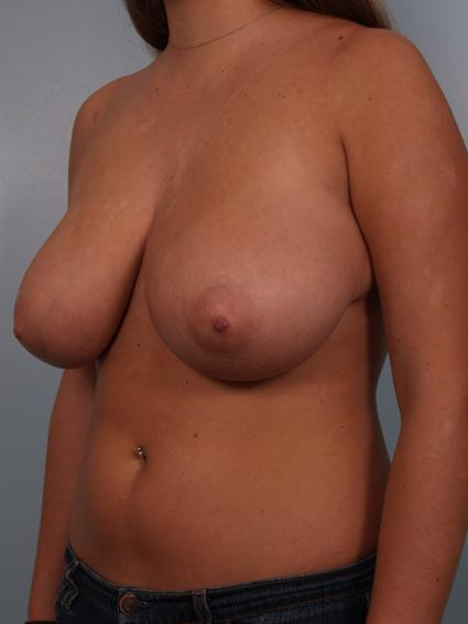 Angled before photo of Breast Reduction - 2