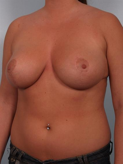 Angled after photo of Breast Reduction - 2