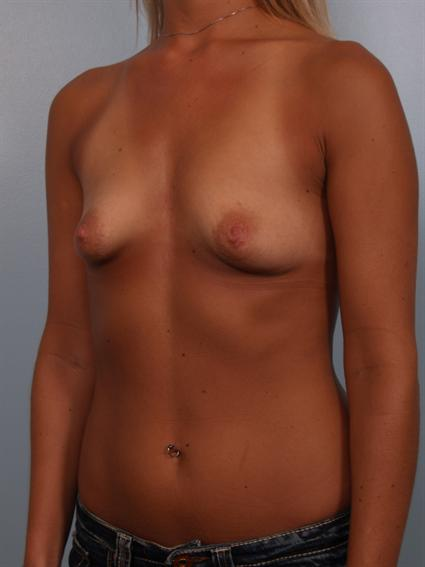 Angled before photo of Breast Augmentation/Breast Lift