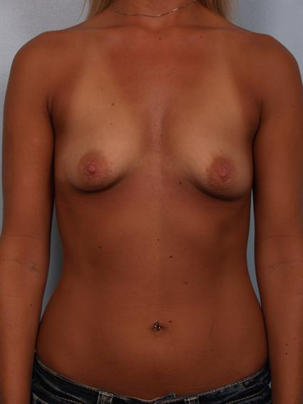 Straight on before photo of Breast Augmentation/Breast Lift