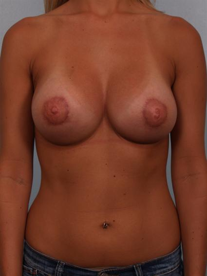 Straight on after photo of Breast Augmentation/Breast Lift