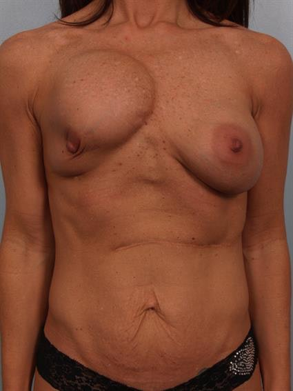 Breast Lift with Implants Gallery - Patient 1612632 - Image 1