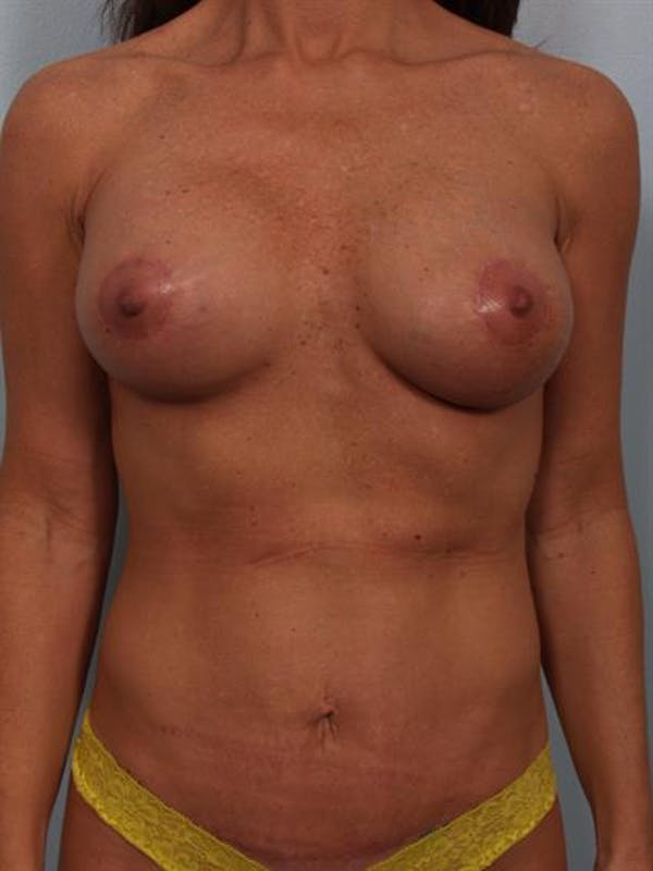 Breast Lift with Implants Gallery - Patient 1612632 - Image 2