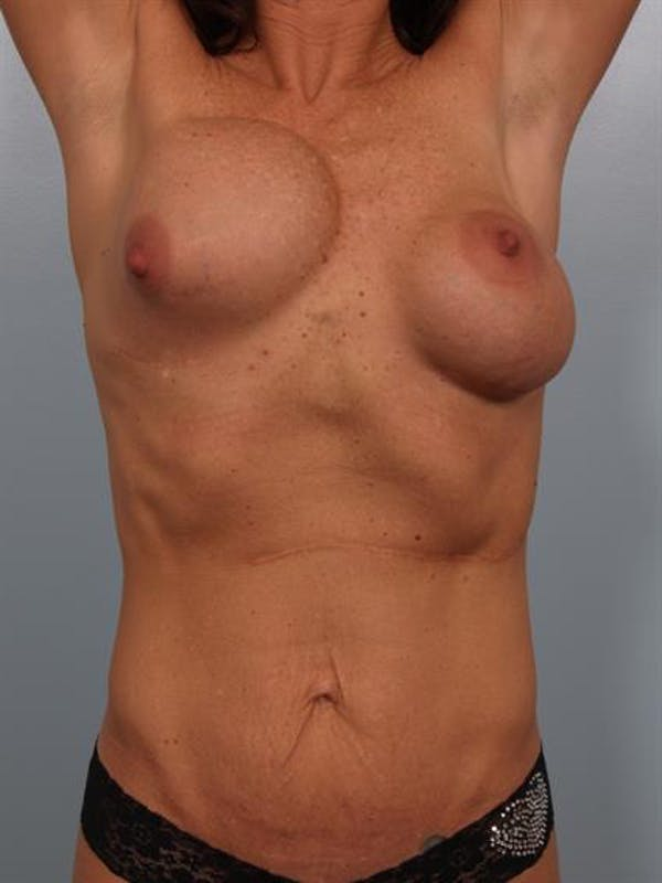 Breast Lift with Implants Gallery - Patient 1612632 - Image 3