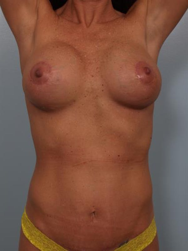 Breast Lift with Implants Gallery - Patient 1612632 - Image 4