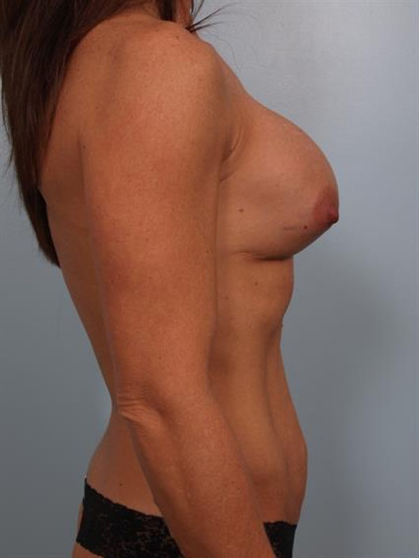 Breast Lift with Implants Gallery - Patient 1612632 - Image 5