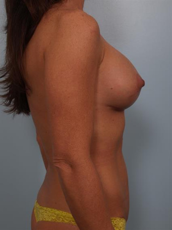 Breast Lift with Implants Gallery - Patient 1612632 - Image 6