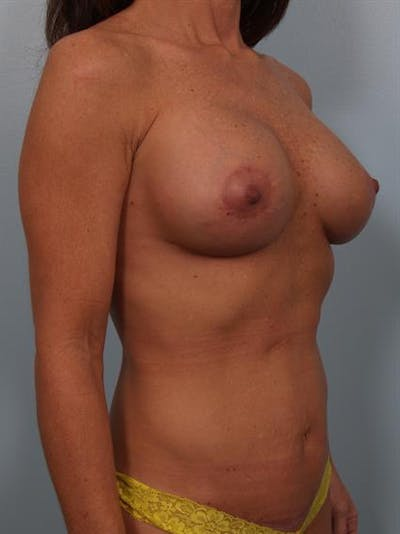 Breast Lift with Implants Gallery - Patient 1612632 - Image 8