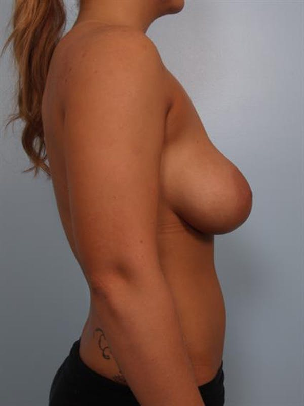 Breast Lift with Implants Gallery - Patient 1612633 - Image 3