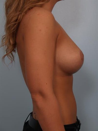 Breast Lift with Implants Gallery - Patient 1612633 - Image 4