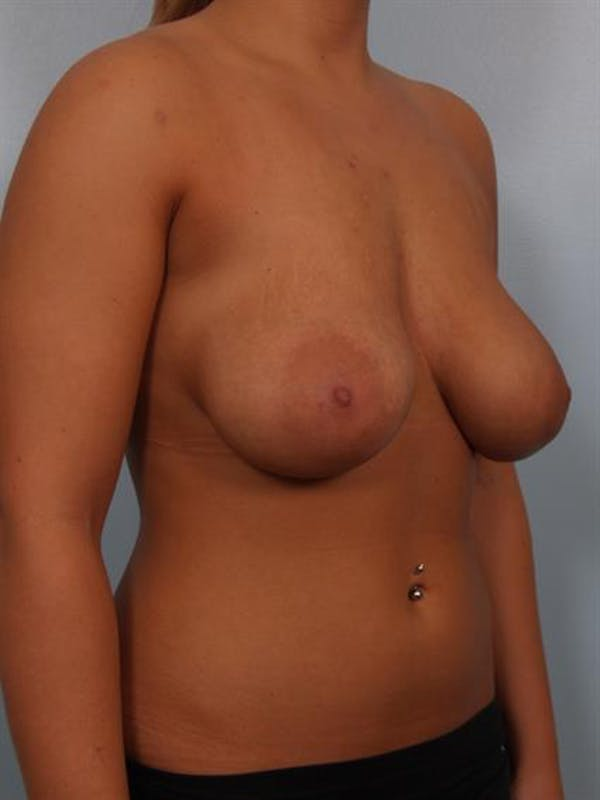 Breast Lift with Implants Gallery - Patient 1612633 - Image 5