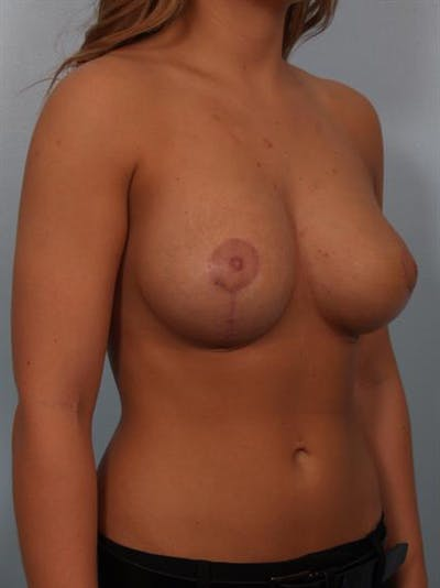 Breast Lift with Implants Gallery - Patient 1612633 - Image 6