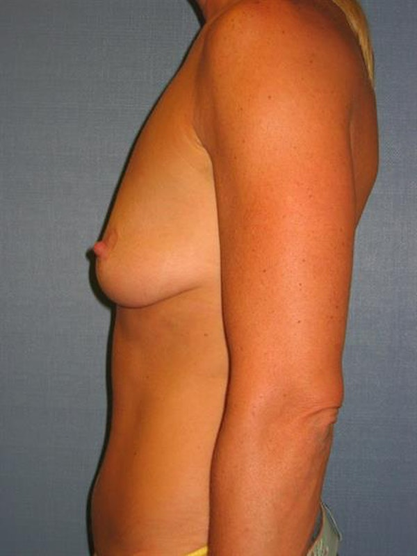 Breast Lift with Implants Gallery - Patient 1612634 - Image 3