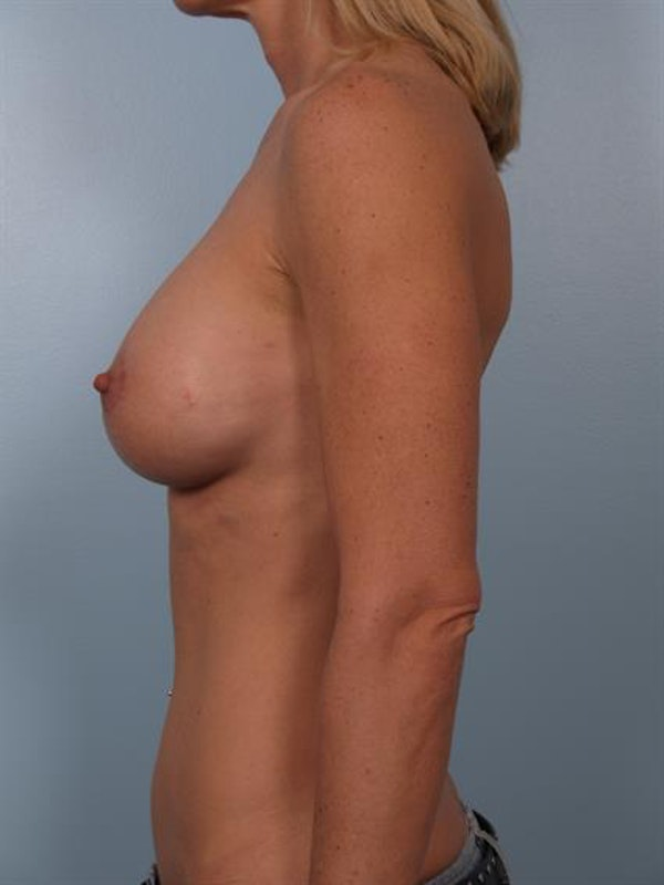 Breast Lift with Implants Gallery - Patient 1612634 - Image 4