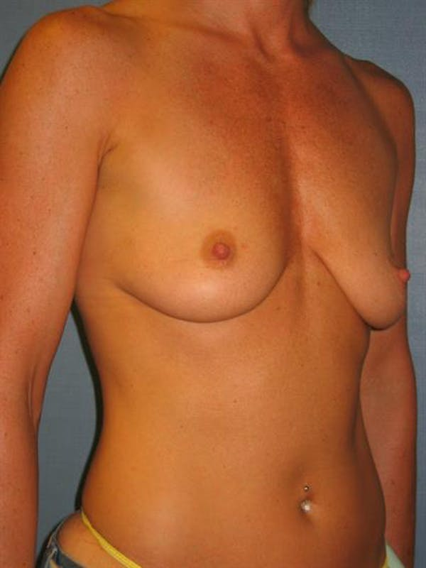 Breast Lift with Implants Gallery - Patient 1612634 - Image 5