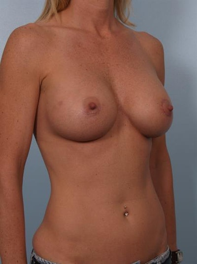 Breast Lift with Implants Gallery - Patient 1612634 - Image 6
