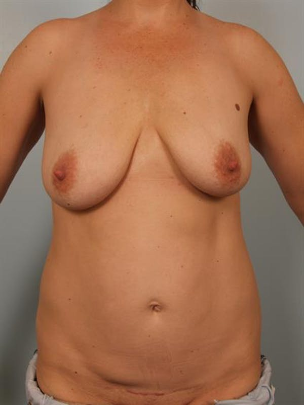Breast Lift with Implants Gallery - Patient 1612636 - Image 1