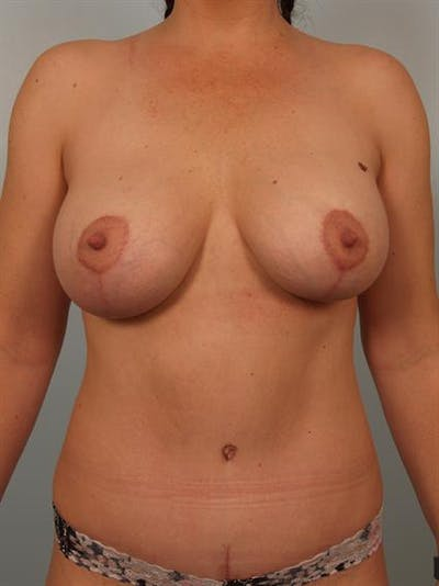 Breast Lift with Implants Gallery - Patient 1612636 - Image 2