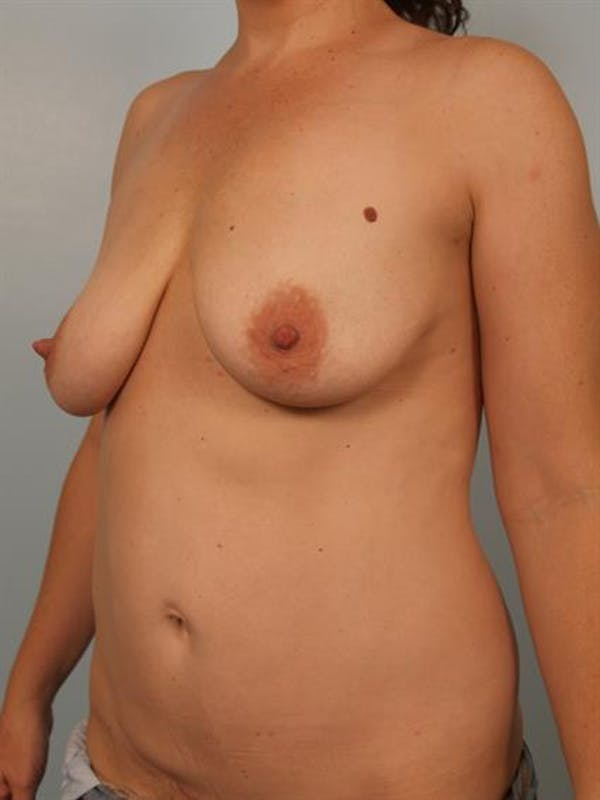 Breast Lift with Implants Gallery - Patient 1612636 - Image 3