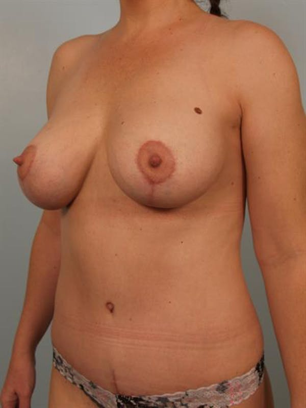 Breast Lift with Implants Gallery - Patient 1612636 - Image 4
