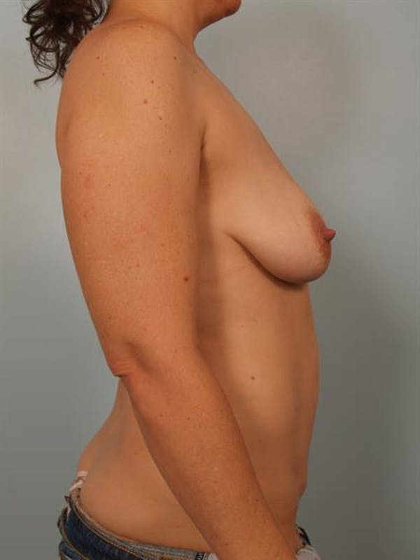 Breast Lift with Implants Gallery - Patient 1612636 - Image 5