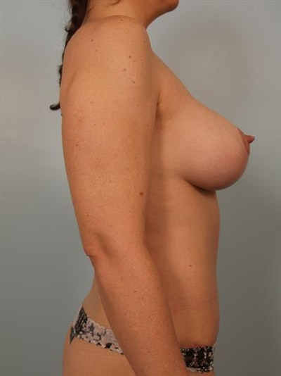 Breast Lift with Implants Gallery - Patient 1612636 - Image 6