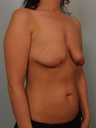 Breast Lift with Implants Gallery - Patient 1612637 - Image 1