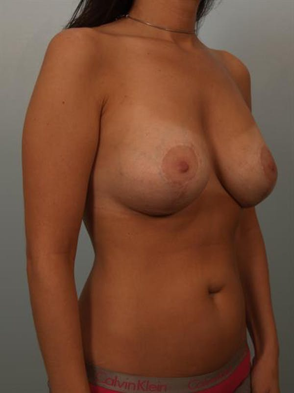 Breast Lift with Implants Gallery - Patient 1612637 - Image 2
