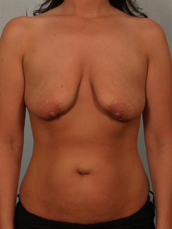 Breast Lift with Implants Gallery - Patient 1612637 - Image 3