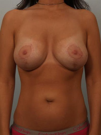 Breast Lift with Implants Gallery - Patient 1612637 - Image 4