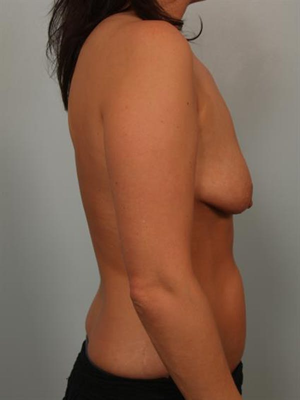 Breast Lift with Implants Gallery - Patient 1612637 - Image 5