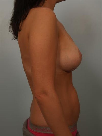 Breast Lift with Implants Gallery - Patient 1612637 - Image 6